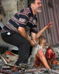 طفل عراقي مصاب
